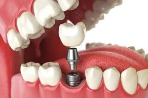 dental implants in NW Calgary