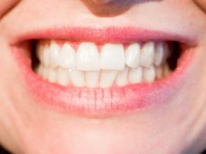 Teeth Whitening in NW Calgary - Hamptons Dental